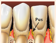Teeth with pus