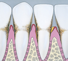 diagram of teeth with periodontis