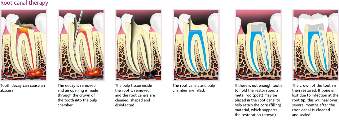 steps involved in a root canal