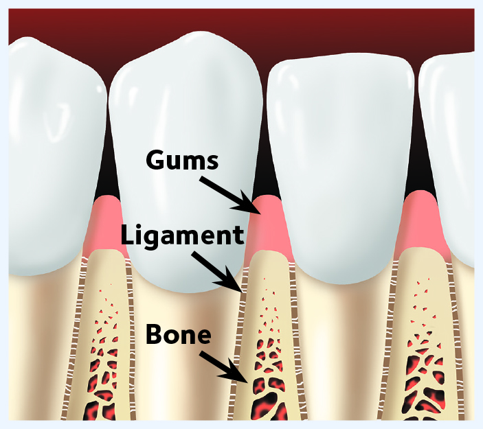 Diagram of mouth with gums, ligament, bone
