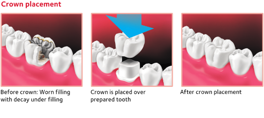 Diagram illustrating how a dental crown is placed