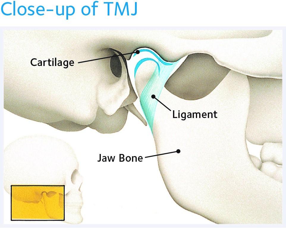 close-up of TMJ