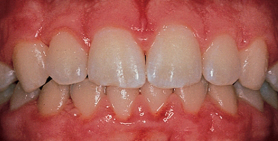 teeth and gums with gingivitis