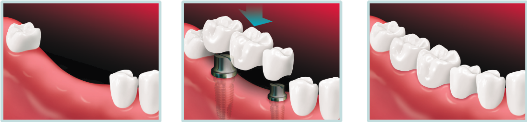 illustration of the process to install an implant supported bridge