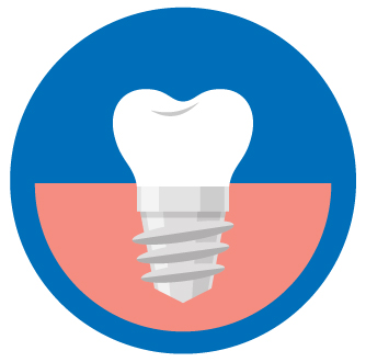 single dental implant costs aspen dental