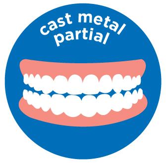 cast metal partial denture costs aspen dental