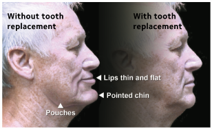 image of facial collapse due to missing teeth