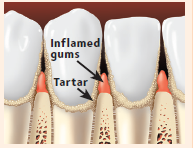 Inflamed gums and tartar