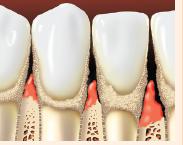 Teeth with tartar