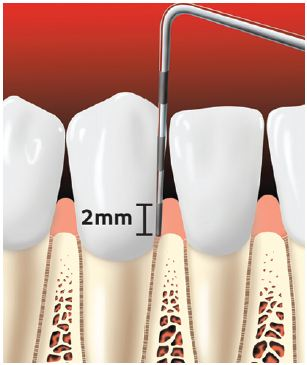 periodontal probe of healthy gums