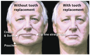 front view of facial collapse due to missing teeth