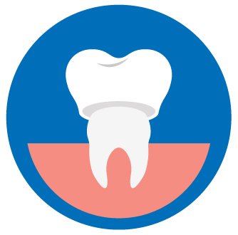 crown costs Aspen Dental