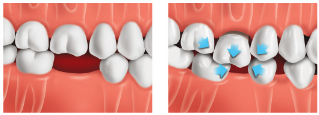 illustration of drifting teeth due to missing tooth