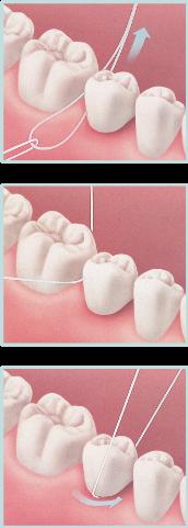 illustration demonstrating how to floss under a dental bridge