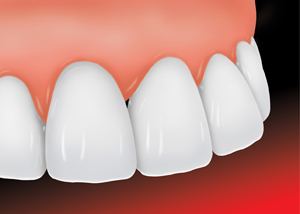 a ceramic veneer after being placed on a chipped tooth